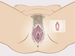 Detail van het maagdenvlies binnenin de vagina.