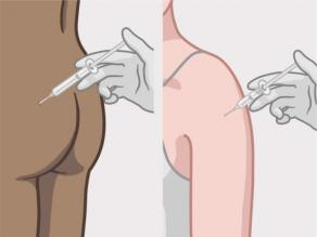 Mjeku duke bërë një injeksion kontraceptiv në vithen ose parakrahun e një gruaje.