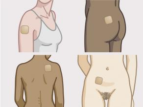 Aplikoni ngjitësin në abdomenin, vithen, shpinën, cepin e shpatullës ose në pjesën e jashtme të krahut tuaj, në lëkurë të thatë e të pastër. Sigurohuni që të mos përdorni krem, vaj, locion, pudër ose makijazh mbi ose rreth ngjitësit.