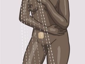 Ju mund të bëni dush, të notoni dhe të bëni ushtrime me ngjitësin kontraceptiv.