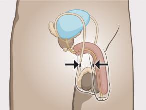 Sterilizimi për burra: kanalet e spermës janë bllokuar.