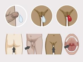 Geïnfecteerd sperma, vaginaal vocht en bloed van de menstruatie van mensen die besmet zijn met hiv kunnen uw lichaam binnenkomen door het slijmvlies van de anus, eikel van de penis, vagina en mond.