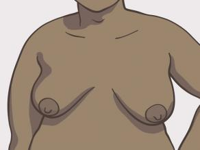 Diferite forme de sâni: sâni de dimensiune medie în formă de pară (ușor ovali)