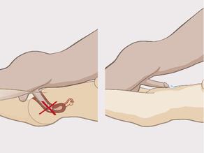 Metoda e tërheqjes: burri e heq penisin e tij nga vagina para se të ejakulojë.